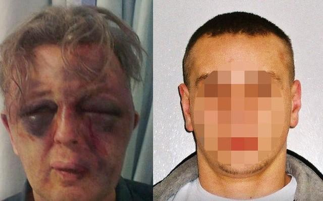 Paul Kohler doznał ciężkich obrażeń podczas napadu, w którym uczestniczył m.in. Oskar P.