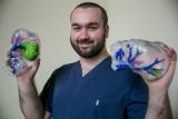 Przed operacjami nowotworów chirurdzy dzwonią do studenta Jana Witowskiego. Po podpowiedzi w 3D