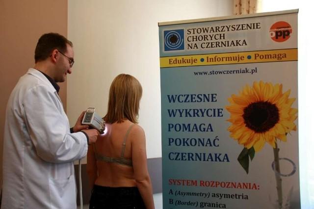 Stowarzyszenie Chorych na Czerniaka organizuje akcje bezpłatnych badań skóry wideodermatoskopem
