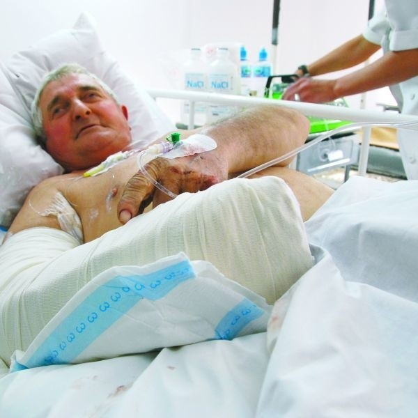 Pan Jan najbliższe tygodnie spędzi w szpitalu. Na razie najważniejsze jest, by w przyszytej ręce wróciło krążenie .