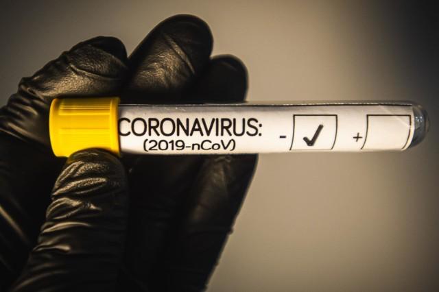 Badania laboratoryjne przyniosły pozytywne wyniki testów na obecność koronawirusa u 1862 osób w całym kraju.