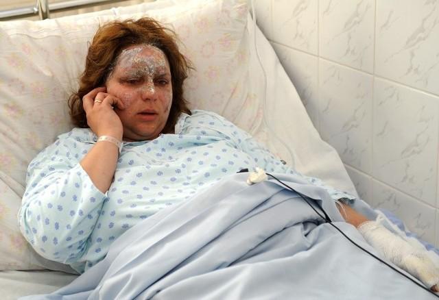 - Było strasznie, nawet klamka była tak gorąca, że gdy ją dotknęłam poparzyłam się - mówi Emilia Staniszewska, która leży w kamieńskim szpitalu.