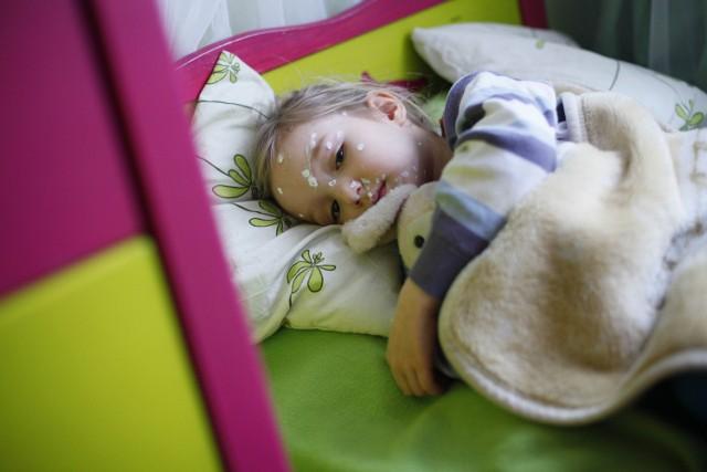 Rodzice chorego dziecka zapraszają inne maluchy, żeby zaraziły się chorobą