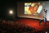 Poznań: Operacja płuc na wielkim ekranie [ZDJECIA, FILM]