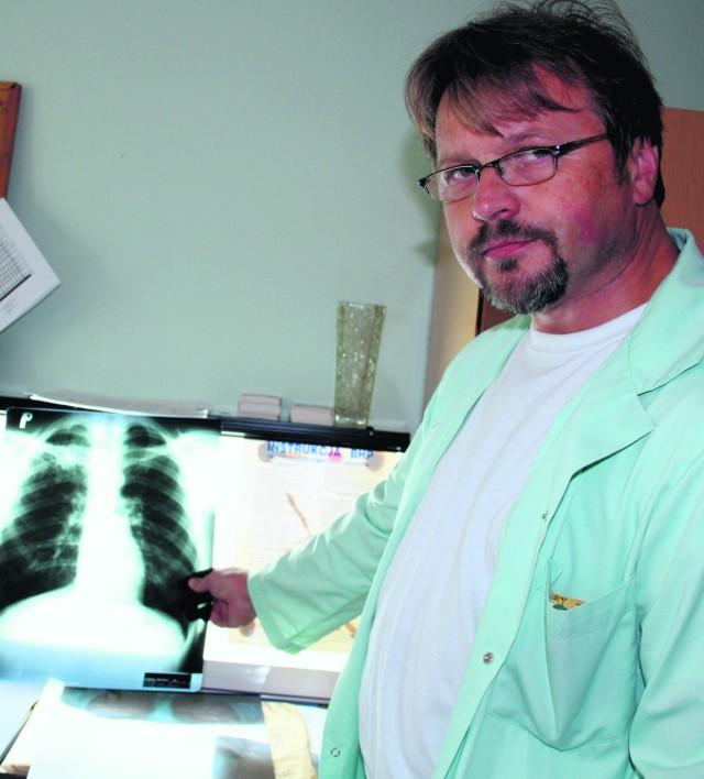 Pulmonolog Krzysztof Barczyk pokazuje jak wyglądają płuca osoby chorej na gruźlicę