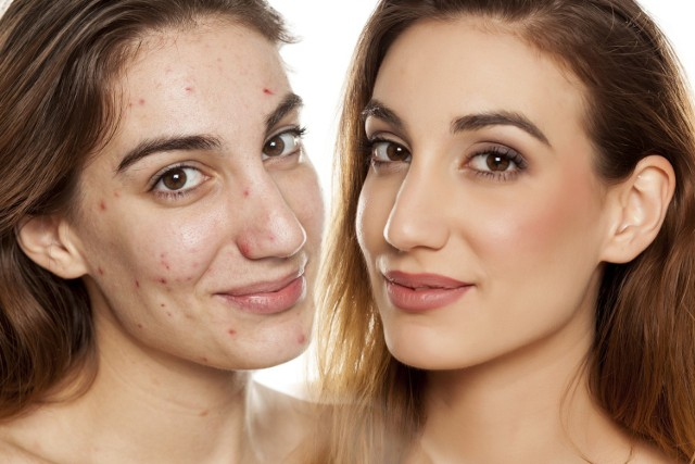 Makijaż podkreślił naturalne piękno i sprawił, że te kobiety wyglądają jak gwiazdy Hollywood!  Zobacz niesamowite metamorfozy!