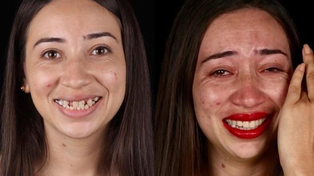 Pomagać ludziom można na różne sposoby. Jednym z nich jest dawanie uśmiechu - i to dosłownie! Brazylijski dentysta Felipe Rossi podróżuje po świecie robiąc to, co potrafi najlepiej - naprawia uśmiechy. Co więcej, robi to kompletnie za darmo! Dla osób, dla których zabieg dentystyczny to luksus, na który nie mogą sobie pozwolić, nowe zęby to nie tylko zmiana wizualna. Możliwość uśmiechnięcia się bez skrępowania często przywraca pewność siebie. Jak zmienili się ci, którzy otrzymali szansę na bezpłatną pomoc? Zobaczcie zdjęcia.  źródło: Felipe Rossi / Instagram