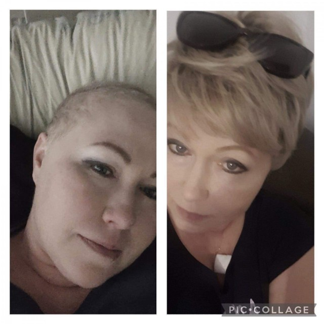 Sylwia z Krakowa walczy z nowotworem piersi. Lek który może jej pomóc na tym etapie choroby nie jest refundowany. O życie kobiety postanowiły zawalczyć sądeczanki. Małgorzata Kowalczyk sama zmaga się z rakiem i wie co przechodzi krakowianka. Zbiera pieniądze na terapię.