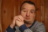 Dostałem nową twarz, nie poddam się! - mówi Grzegorz (WYWIAD, ZDJĘCIA)