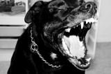 Zielona Góra. Pitbull ugryzł 13-letnią dziewczynkę. Pies nie miał smyczy i kagańca, był agresywny