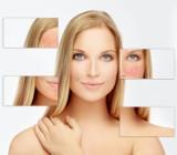 Poradnik - problematyczna skóra. Jakich składników w kosmetykach do twarzy unikać
