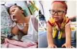 4-letnia Ala zbiera pieniądze na operacje. Bez niej wyląduje na wózku inwalidzkim