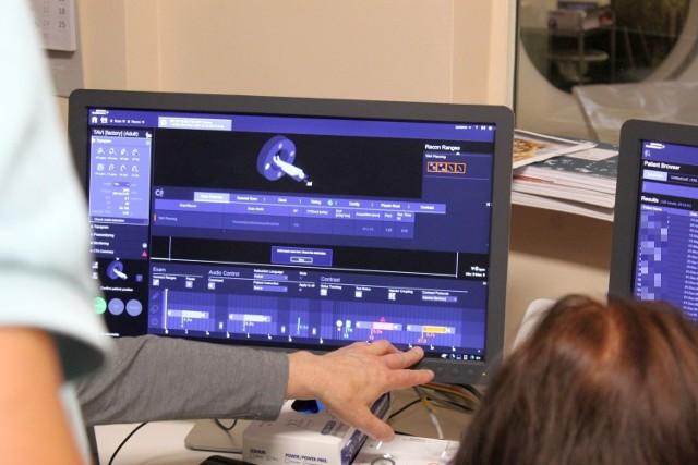 W oświęcimskim szpitalu odbyły się pierwsze badania diagnostyczne naczyń wieńcowych i chorób zastawkowych serca z zastosowaniem nowatorskiej metody