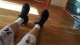 Potrzebna nowa proteza nogi dla bydgoszczanina. Pomóż, zbiórka trwa