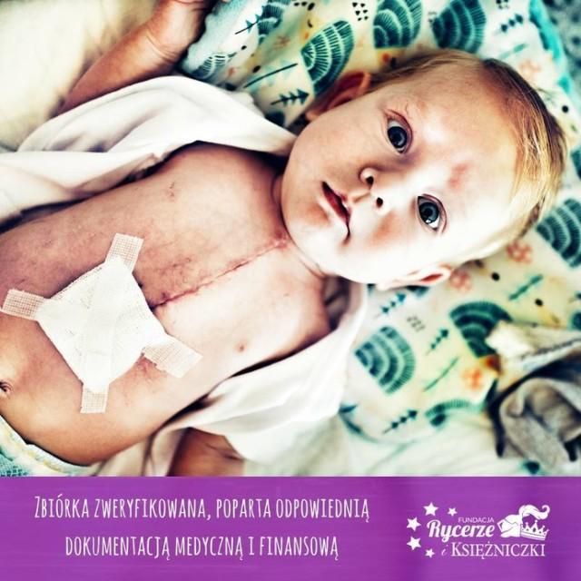 Nowy Dwór Gdański. Gwałtownie pogorszył się stan zdrowia Ignasia Wdowicza, który cierpi na skomplikowaną wadę serca. Chłopiec jest jest w stanie krytycznym. Rodzice Ignasia proszą o modlitwę i wsparcie w tych wyjątkowo trudnych dla nich chwilach.