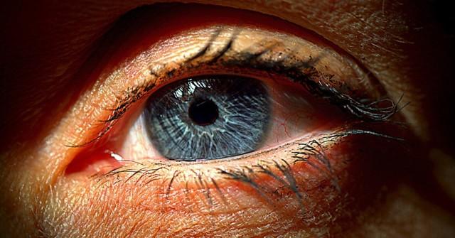 Zapalenie spojówek kolejnym z objawów koronawirusa?