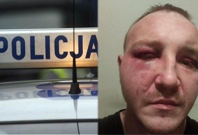 Robert Miździoł przedstawił zdjęcie swojej twarzy po interwencji policji.