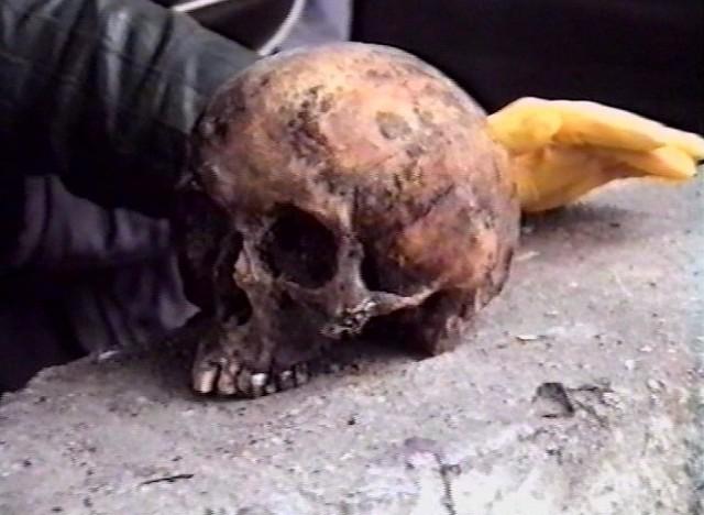 Jedna z czaszek ofiar UB odnalezionych w przyszpitalnym ogrodzie