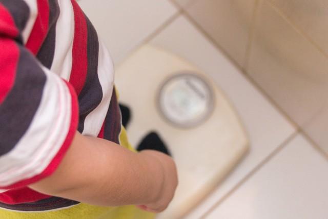 Przez otyłość rozumiemy patologiczne zwiększenie tkanki tłuszczowej, które prowadzi do upośledzenia naszej aktywności. Ponadto wywołuje liczne choroby, które mogą skończyć się nawet przedwczesnym zgonem.