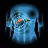Rak to nie wyrok! Nie lekceważ sygnałów alarmowych i zadbaj o swój układ pokarmowy - przypomina małopolski NFZ