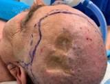 Operacja w Narodowym Instytucie Onkologii w Gliwicach: Chirurdzy pobrali płat z uda pacjenta, by odtworzyć na jego głowie ubytek skórny