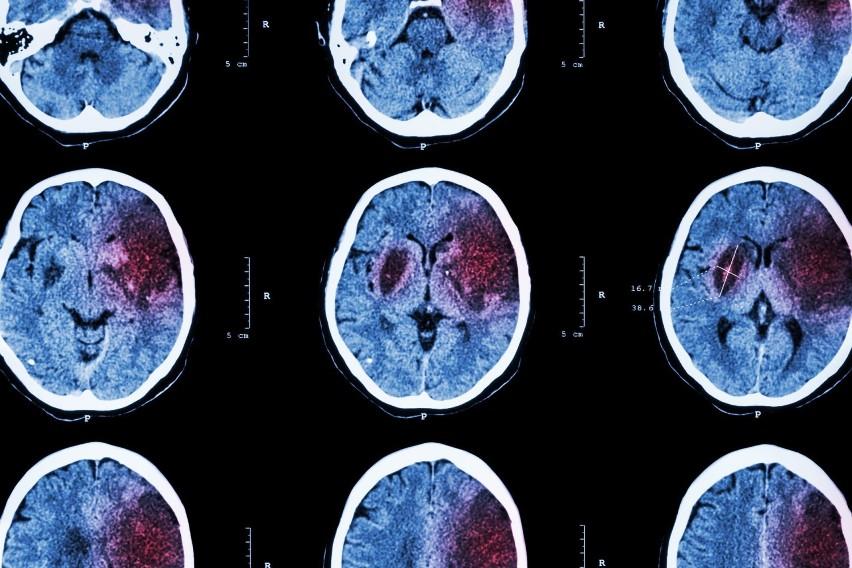 Udar niedokrwienny mózgu następuje na skutek niedrożności...