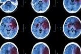 Udar mózgu może mieć związek z bakteriami próchnicy