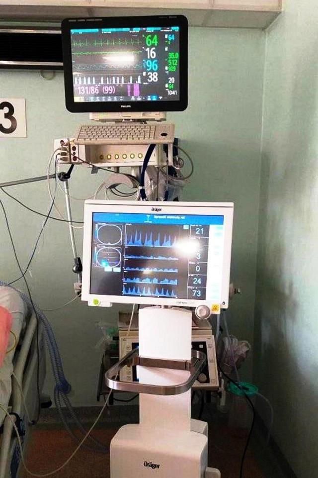 Tomograf impedancyjny, jaki znajduje się w bielskim szpitalu, jest bardzo przydatny w leczeniu pacjentów zakażonych koronawirusem SARS - CoV-2