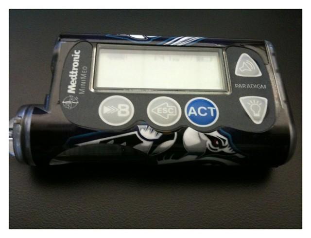 Obecna pompa insulinowa nastolatki.