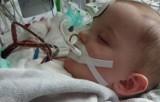 Wypadek 2-letniego Michałka. Ruszyła zbiórka pieniędzy na leczenie. Chłopca czeka długa rehabilitacja