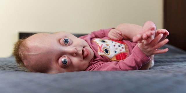 """Dla małej Hani Krakowskiej nadzieją na powrót do zdrowia jest kosztowna operacja w Dallas. Sztafeta biegowa """"Serce Nadziei #dla Hanki"""" to jedna z licznych akcji organizowanych na rzecz dziewczynki."""