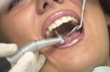 Zgrzytanie zębami – skąd się to bierze?
