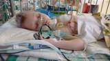 Hubert ma 3 latka, a przeszedł już 17 operacji. Teraz potrzebna jest szczepionka za milion złotych!