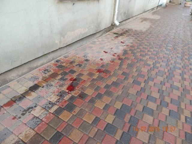 W kamienicy przy Mickiewicza w Brzezinach kobieta pchnęła nożem konkubenta