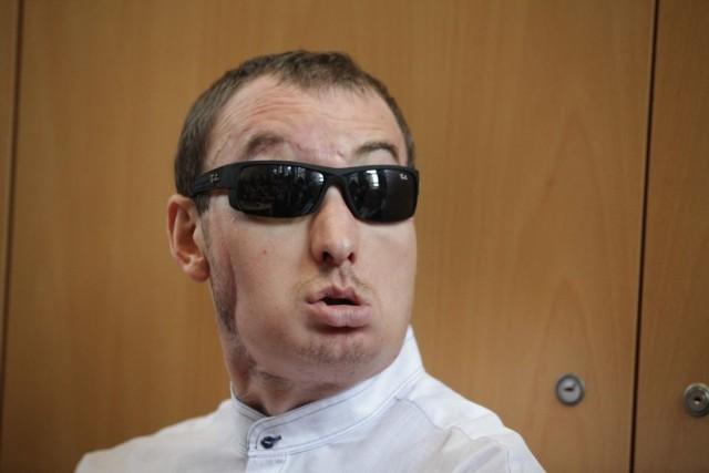Przeszczep twarzy w Gliwicach najlepszym ubiegłorocznym zabiegiem świata