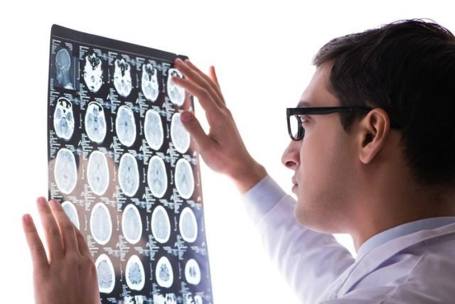 U co trzeciej osoby, która przeszła Covid-19, pojawiają się objawy o charakterze neurologicznym lub zaburzenia psychiczne.