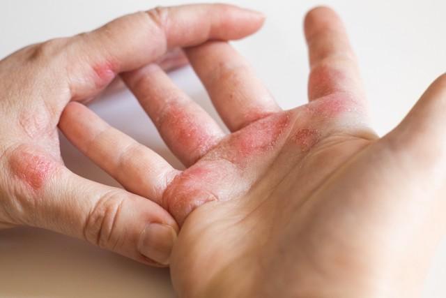 AZS to choroba wielonarządowa o charakterze autoimmunologicznym i genetycznym podłożu. W społeczeństwie traktowana jest jednak jako zaraźliwa choroba skóry, co stanowi powód społecznego ostracyzmu w stosunku do cierpiących na nią osób.