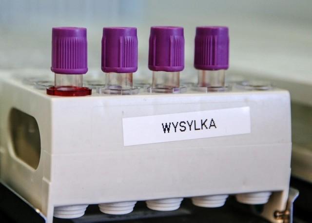 Dane statystyczne dotyczące pandemii koronawirusa we wtorek, 21 września 2021 roku.