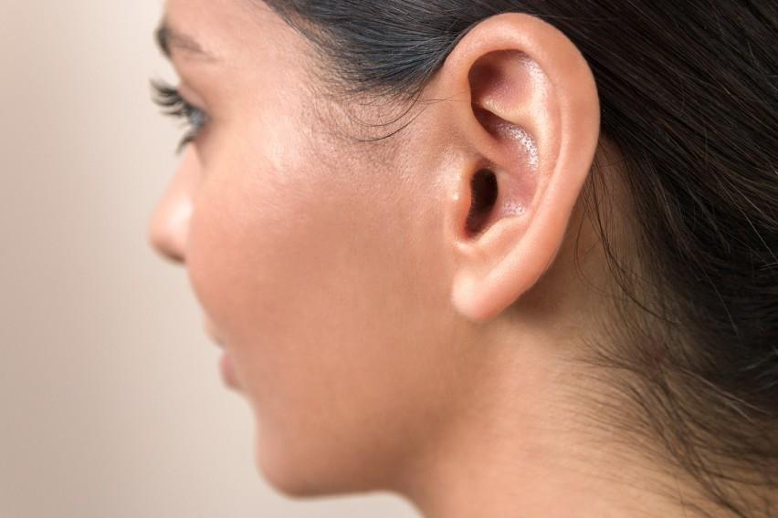 02- wymagana korekta słuchu:02.01 - aparat słuchowy...