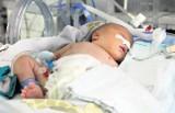 W ostrowskim szpitalu przyszedł na świat noworodek, który ważył zaledwie 700 gramów!