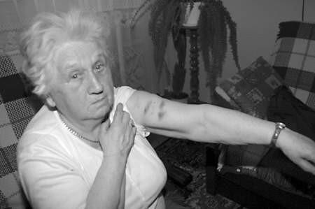 Pani Janina pokazuje siniaki, które zostały jej po szarpaninie z nieproszonymi gośćmi. Fot. Olgierd Górny