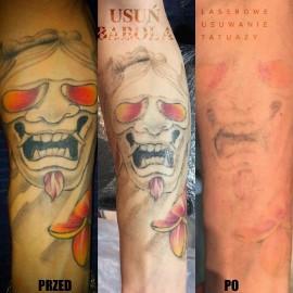 Usuwanie Tatuaży Jaką Metodę Wybrać Ile To Kosztuje Ile